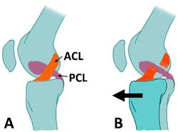 ACL 前十字靭帯
